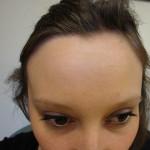 stirn-gemeinfrei
